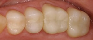 patient 2 after fillings