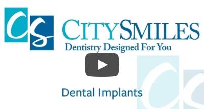 City Smile_Implants